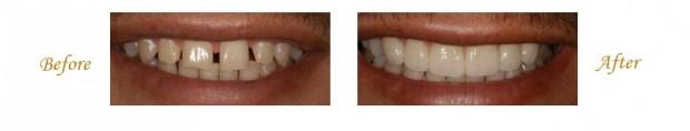 las-vegas-dentist-2