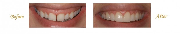 Smile Makeover in Las Vegas