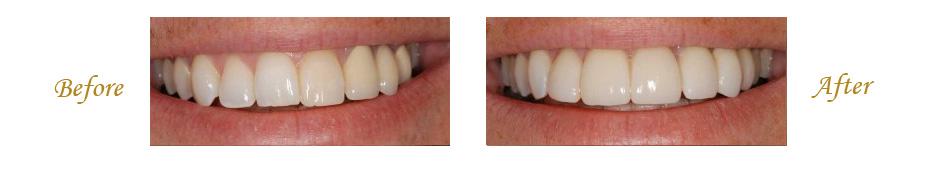 las-vegas-dentist-5