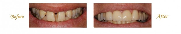 Las Vegas Smile Makeover