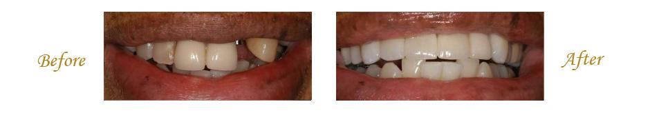 las-vegas-dentist-9