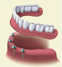 Las Vegas Denture Implants