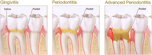 Periodontal Gum Disease Las Vegas