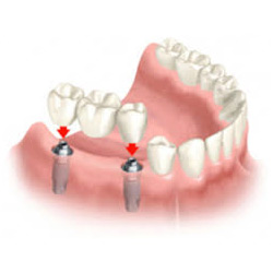 Implant Supported Dental Bridge Las Vegas
