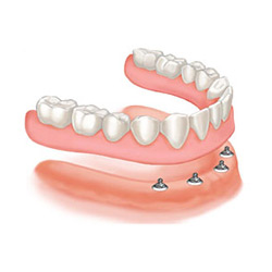 Snap On Dentures Las Vegas