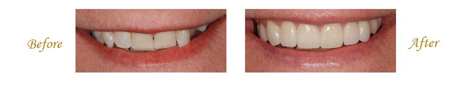 las-vegas-dentist-1