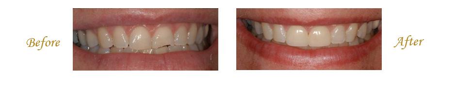 las-vegas-dentist-3