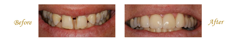 las-vegas-dentist-6