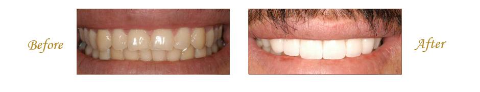 las-vegas-dentist-7