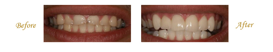 las-vegas-dentist-8
