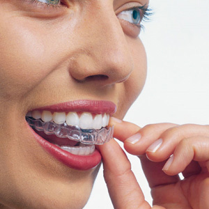 las-vegas-invisalign-clear-braces-2