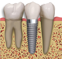 Las Vegas Dental Implants