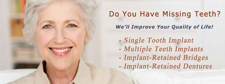 Dental Implant Retained Bridges and Dentures Las Vegas