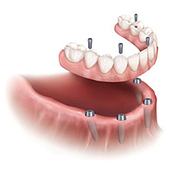 Screw Retained Implant Denture Las Vegas