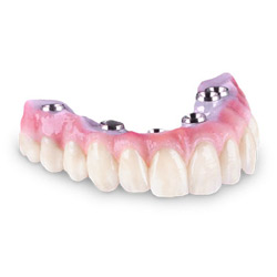Zirconia Porcelain Bridge Las Vegas
