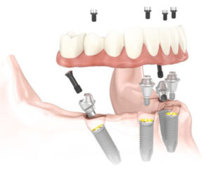 All on 4 Dental Implants Las Vegas