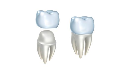 Porcelain Dental Crowns Las Vegas